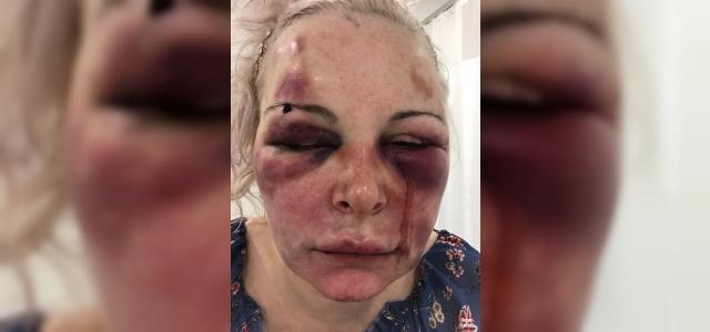 Kadın kendisini döven kişi hakkında dehşet saçan ifade verdi!