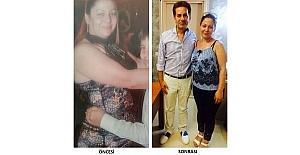 Tüp mide ameliyatıyla 6 ayda 123 kilodan 83 kiloya düştü