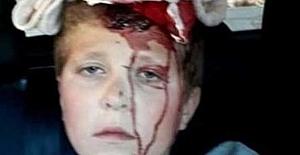 Filistinli çocuğa gaz bombalı saldırı