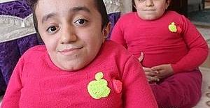 'Cam kemik' ikizlerinin tek isteği arkadaşlarıyla oynamak