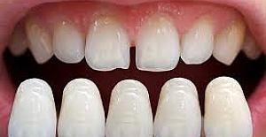 Lamine Diş Nedir