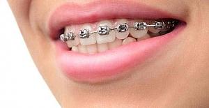 Diş Teli Takacakların Bilmesi Gerekenler